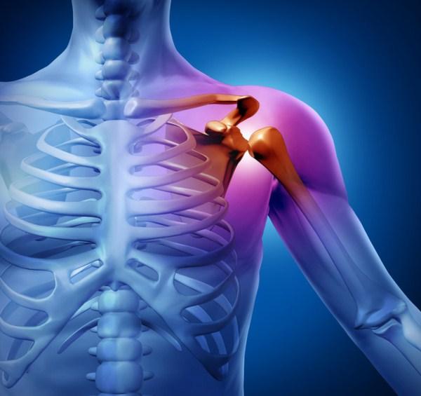 fájdalom a bal vállízület kezelésében