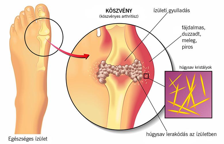 Köszvény tünetei és kezelése - HáziPatika