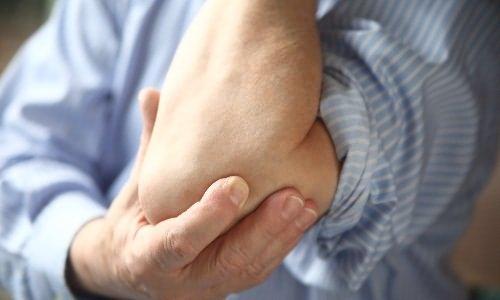 A könyökcsukló epicondylitise - a teniszütő könyöke, könyökfájás