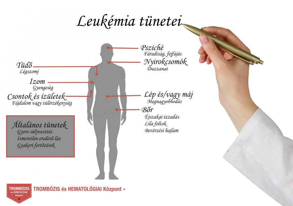 Hematológiai szakrendelés, hematológus - Medicover