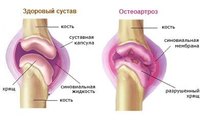 Térd osteoarthritis — tünetek, kezelés otthon