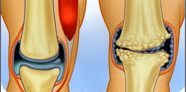 Ízületi fájdalomcsillapítás módszerei