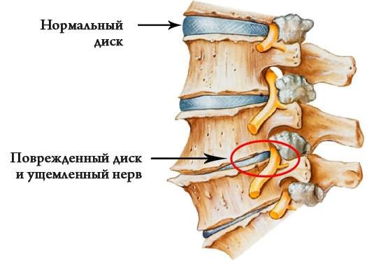 Hagyományos és hagyományos csípő ízületi gyulladás, hirudoterápia, apiterápia, akupunktúra kezelés