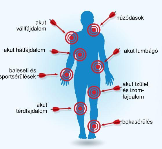 az orvosok artrózist kezelnek fájdalom a bokán esés után