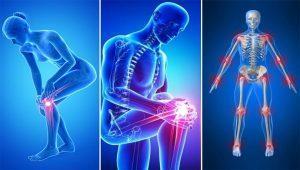 coxarthrosis és arthrosis kezelése