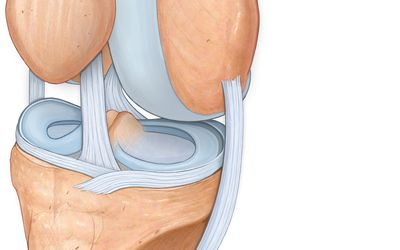 A térdízület artritisa (gonartritisz) - Ficam
