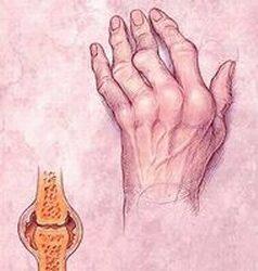 az ízületek fájdalma a fertőzés miatt fájdalom a térd artritiszével