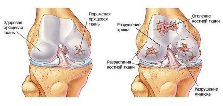 PharmaOnline - Tömören az arthrosisról