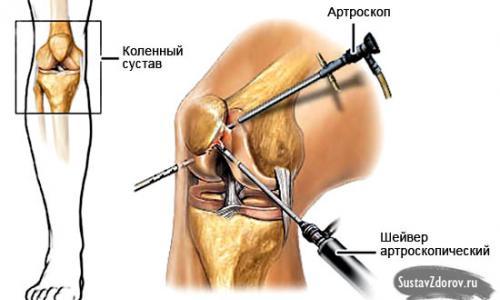 a könyökízület deformáló ízületi kezelése
