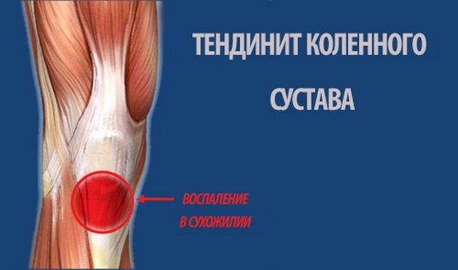 térdfájdalom lapos lábak miatt
