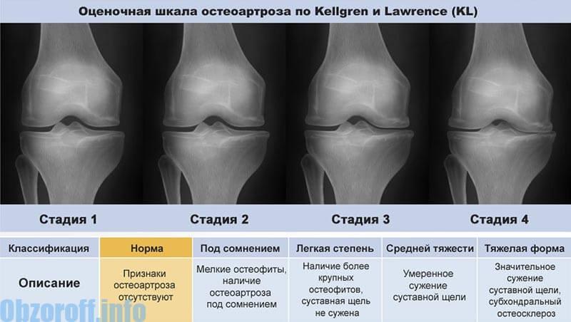 ízületi fájdalom, mit jelent a kezelés