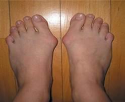 deformáló artrózis a nagy lábujj, hogyan kell kezelni svájci térdízületi kezelés
