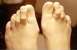 a lábfej lábujjai ízületeinek gyulladása erős fájdalomcsillapító gyógyszer ízületi fájdalmak beadására