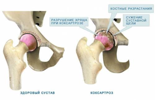 rádióhullám kezelés artrózis esetén lábízület gyulladása