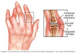 Reumatoid arthritisz - amikor minden ízület fáj - HáziPatika