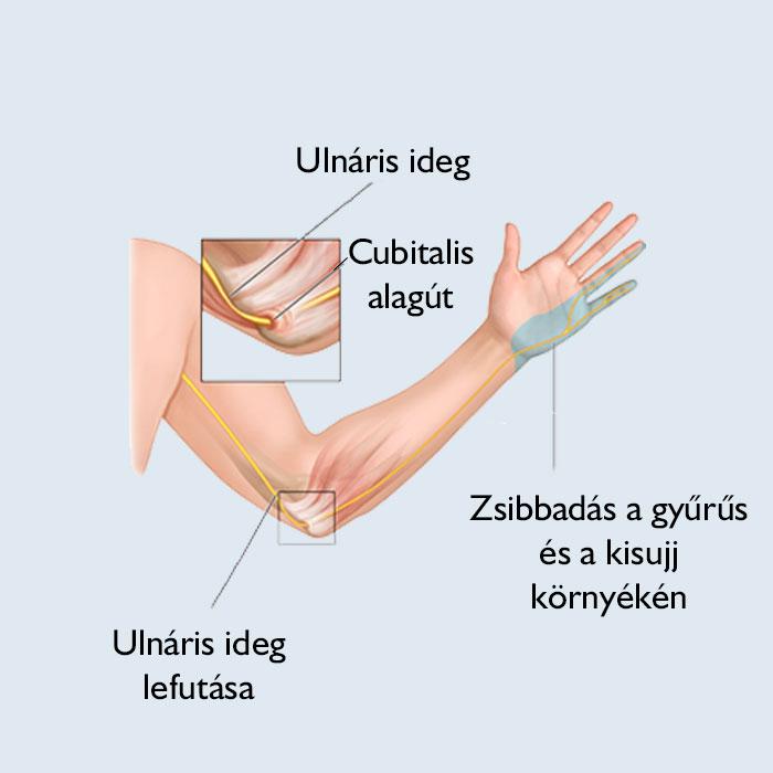 Súlyos problémákat jelezhet a kéz zsibbadása