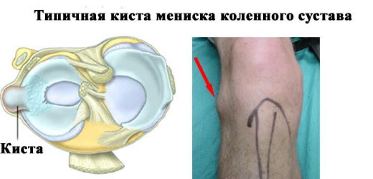a bal térdízület oldalsó meniszkuszának károsodása csont- és porcszövet helyreállítási folyamatok