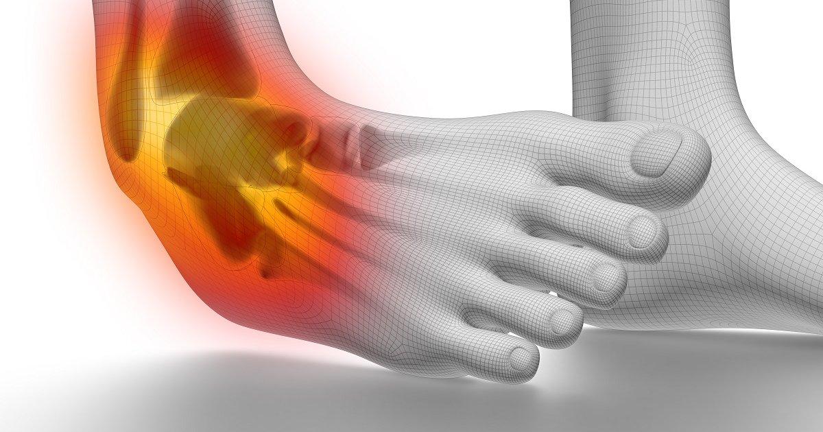 csípő fájdalom gördülő lábát artrózis kezelési módszerei