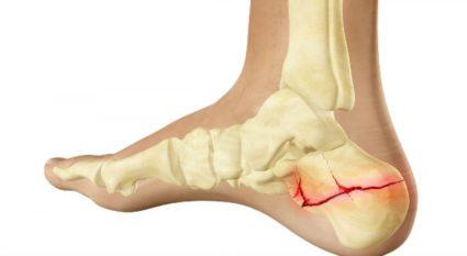 1 fokos csípőízületek deformáló artrózisának jelei amoxicillin ízületi fájdalom