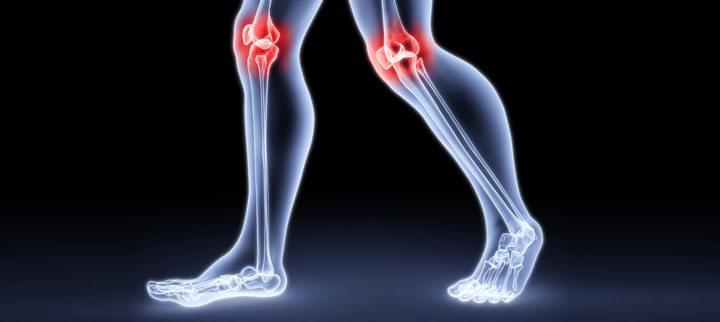a lábak ízületei fájnak, mit kell tenni, mint kezelni