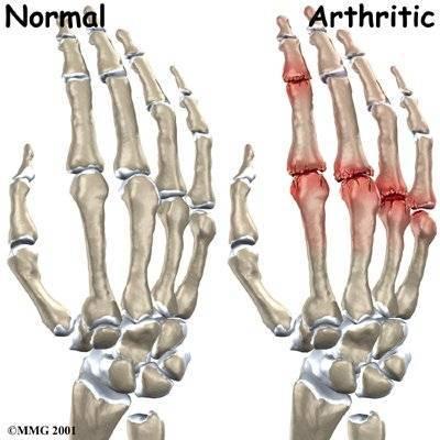 levél ízületi kezelés oldalsó ligamentum sérülés térdkezelés
