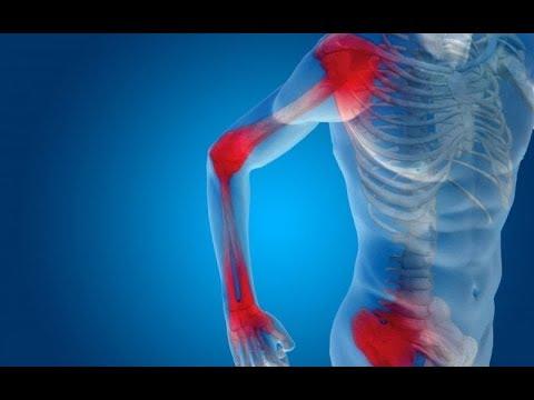 az alsó végtagok ízületeinek osteochondrosis mi fáj a nők csípőízületeire