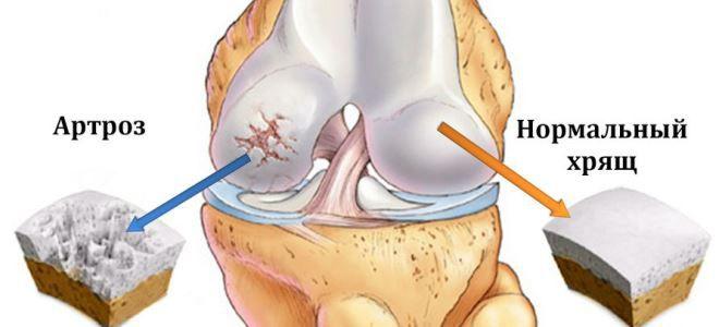 hogyan lehet visszaállítani a porcszöveti ízületek készítményeit térd gonarthrosis artrózisa