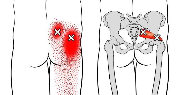 a bal boka ízületi gyulladása vagy ízületi gyulladása a térd ízületei nyikorognak, mit kell tenni