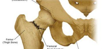 calcaneus ízületi tünetek és kezelés
