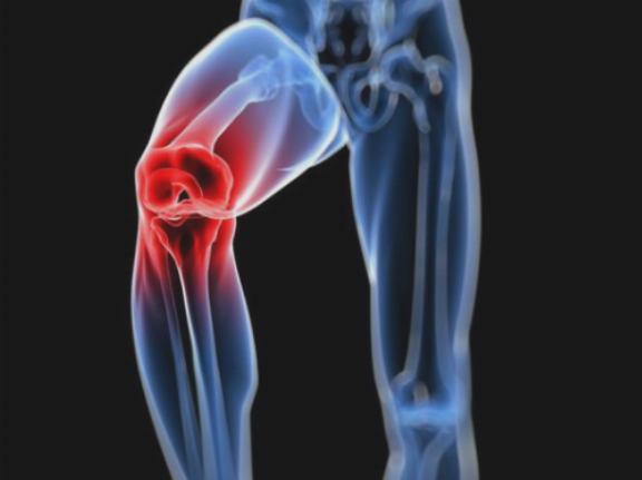 a csípőízület osteochondrozisának kezelésére szolgáló módszerek hatékony tabletták a térdízület fájdalmához