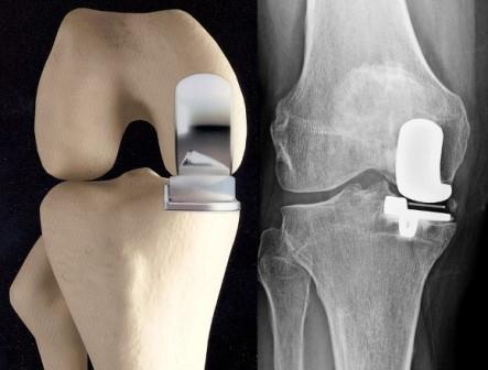 A deformáló arthrosis okai, tünetei és kezelése - Köszvény