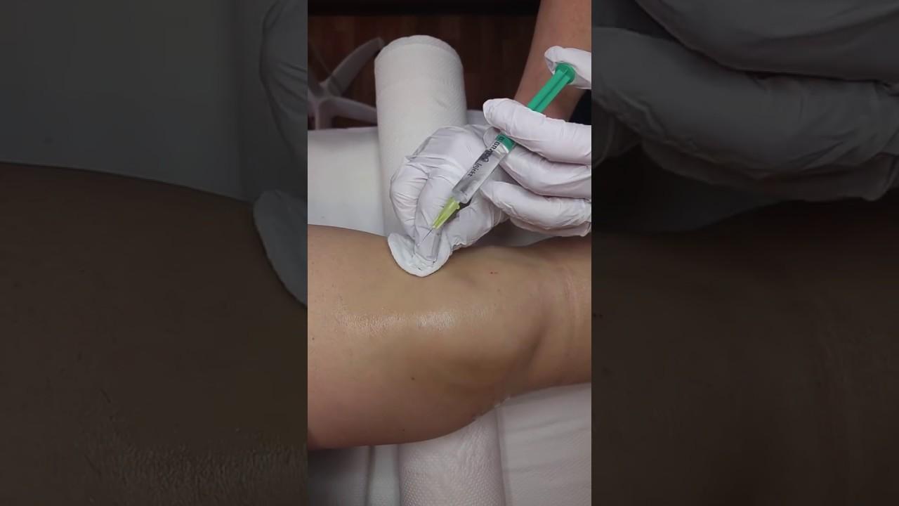 ízületi fájdalom 6 betű krónikus vállízületi gyulladás