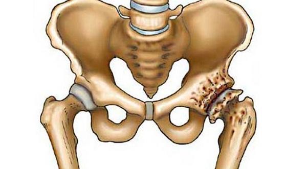 vállízület stádium artrosis