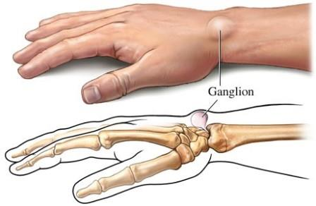 az artrózis kezelésére németországban