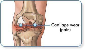 Térdfájdalom - térdfájdalmat okozó degeneratív kórképek - Súlypont Ízületklinika