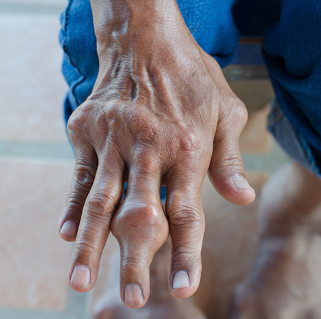 milyen betegségek a lábak ízületei