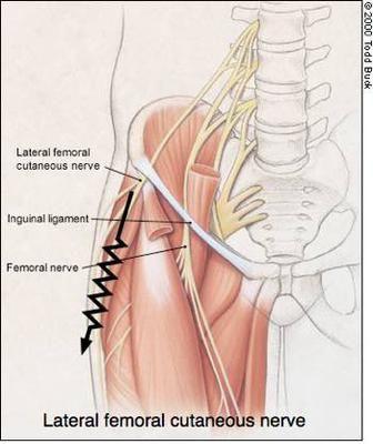 csípő dysplasia csecsemőkezelésben a térd artrózisának 3 szakaszának kezelése