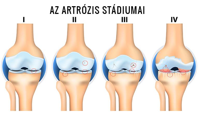Vitamin Sziget - Betegségek / Artrózis