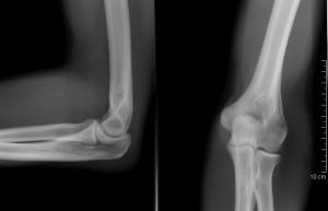 a karok ízületei fájnak a könyök vállain kórtörténet térd osteoporosis