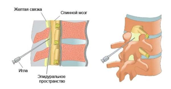 komplex készítmények nyaki osteochondrosishoz