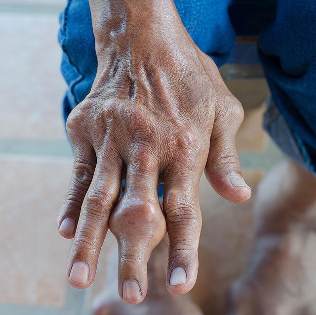 fájdalom és ízületi megnagyobbodás