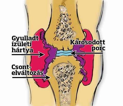 az összes csont és ízület fájdalma térdízület liba-láb kezelés