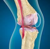 synovitis artrózisos kezeléssel