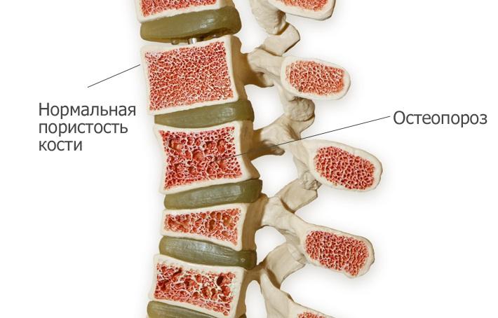 kenőcsék térdízületek fájdalmainak kezelésére