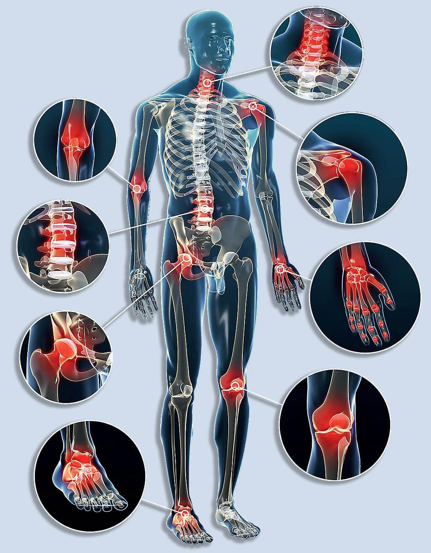 az életkorral összefüggő lábak és ízületek fájdalma minden ízület fáj, mit kell enni