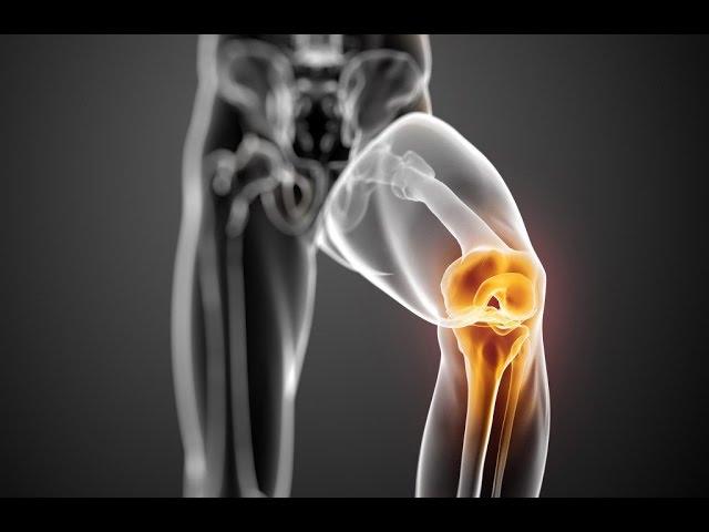 térdfájdalom ellen házilag ortopédiai kezelés ízületi ízületi gyulladás