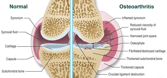 láb-láb fájdalom a csípőízületekben