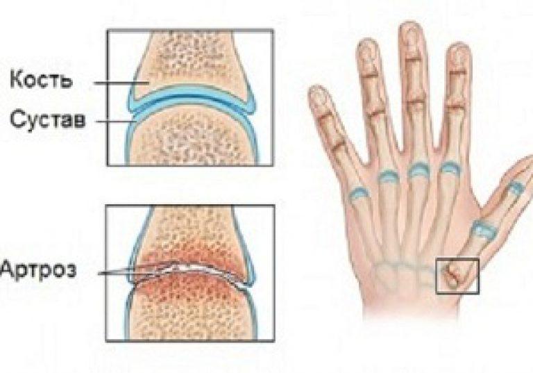 mint a kezek ízületeinek kezelése ízületi csontritkulás hogyan kell kezelni