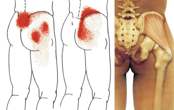 Lumbális fájdalom kezelés kenőcsgélek. Kenőcs a hátfájásért, mi a legjobb