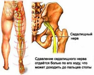 megcsípődött ideg kezelése a csípőízületben a könyökízület traumatikus bursitisz kezelése